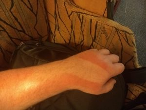 Sunburn line from GivMohr sling