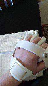 Hand splint for finger tone